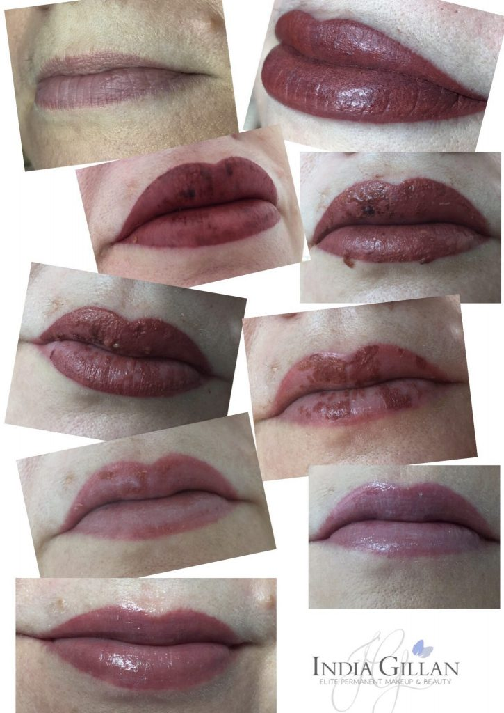 permanent lip colour: lip recovery after treatment India Gillan Rochester Kent
