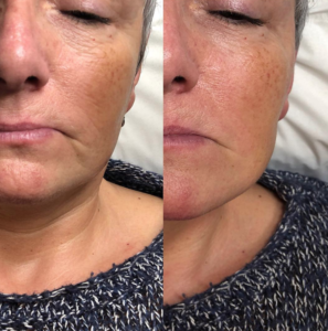 India Gillan semi permanent makeup rochester kent Facial Contouring